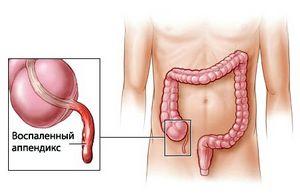 Аппендицит: симптомы, предпосылки, исцеление