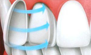 Люминиры – идеальная форма и цвет зубов