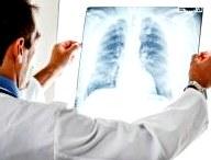 Пульмонолог. Когда стоит обращаться к спецу?